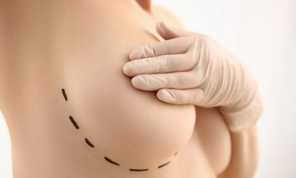 Borstvergroting Plastische chirurgie